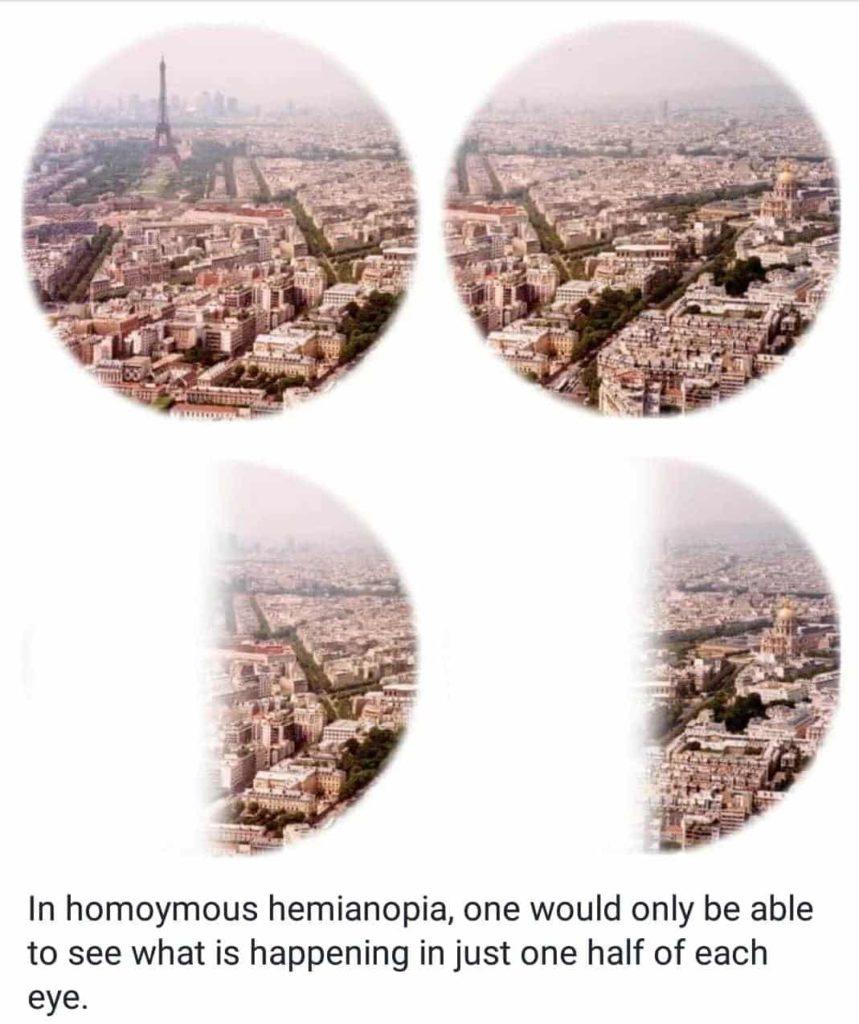 homoymous hemianopia