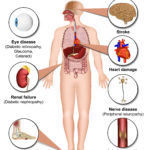 Complications of diabetes scaled