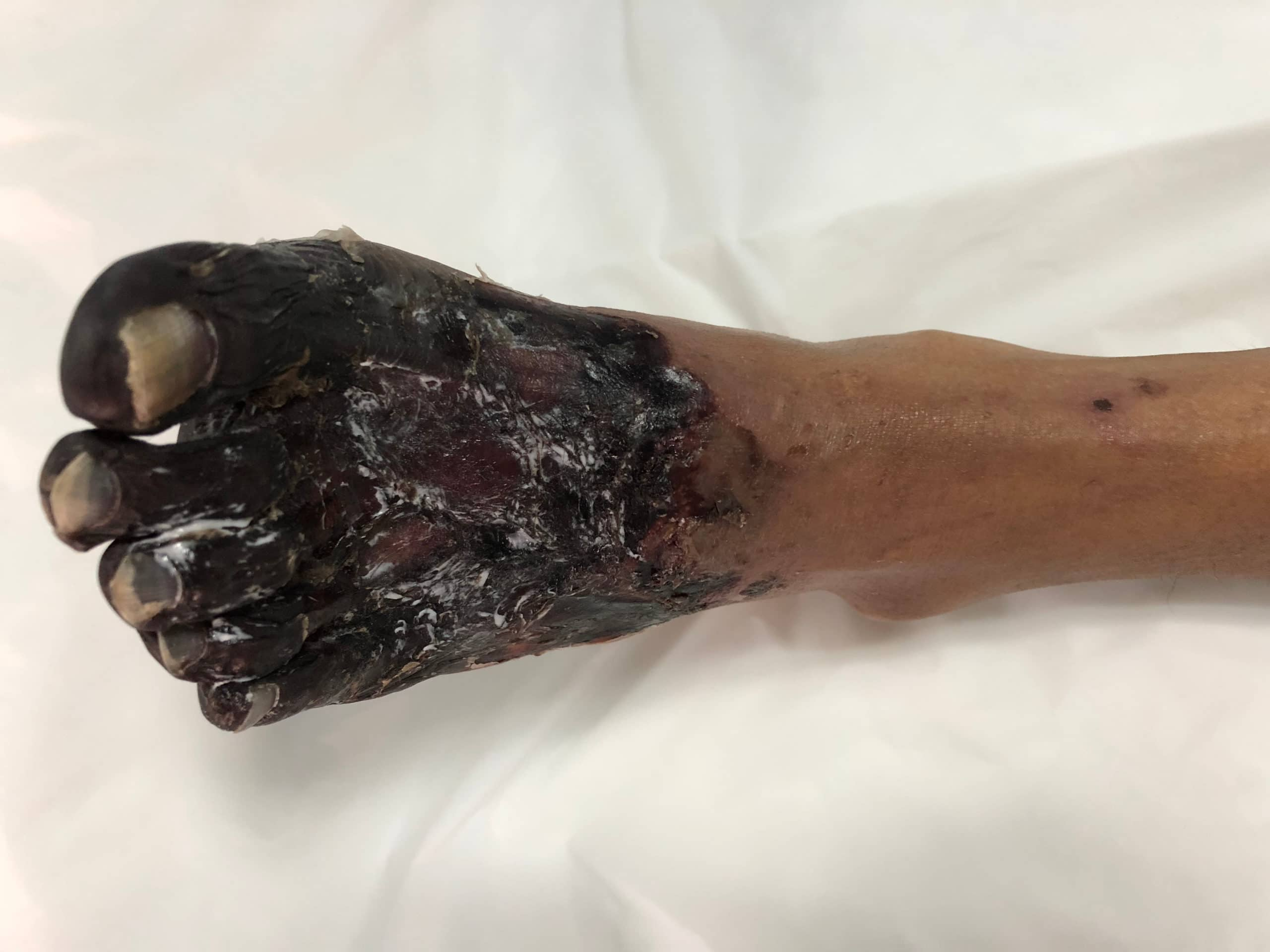 diabetic foot ulcers can cause foot gangrene scaled