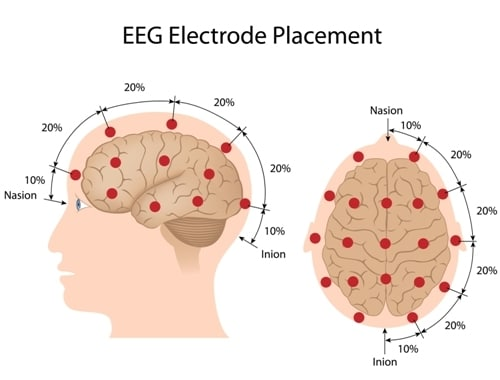 EEG for diagnosis of epilepsy