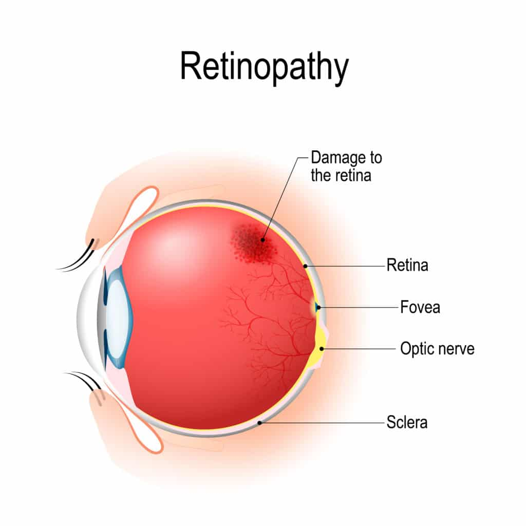 Retinopathy caused Hypertension