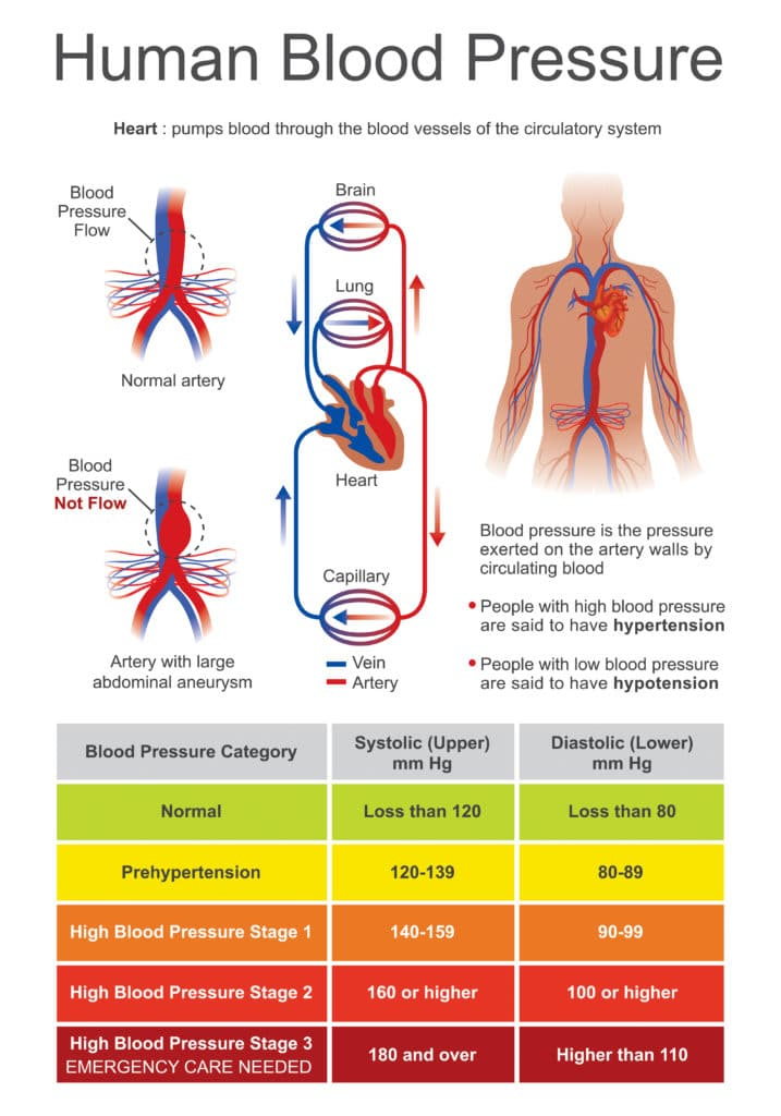 Stages of high blood pressure