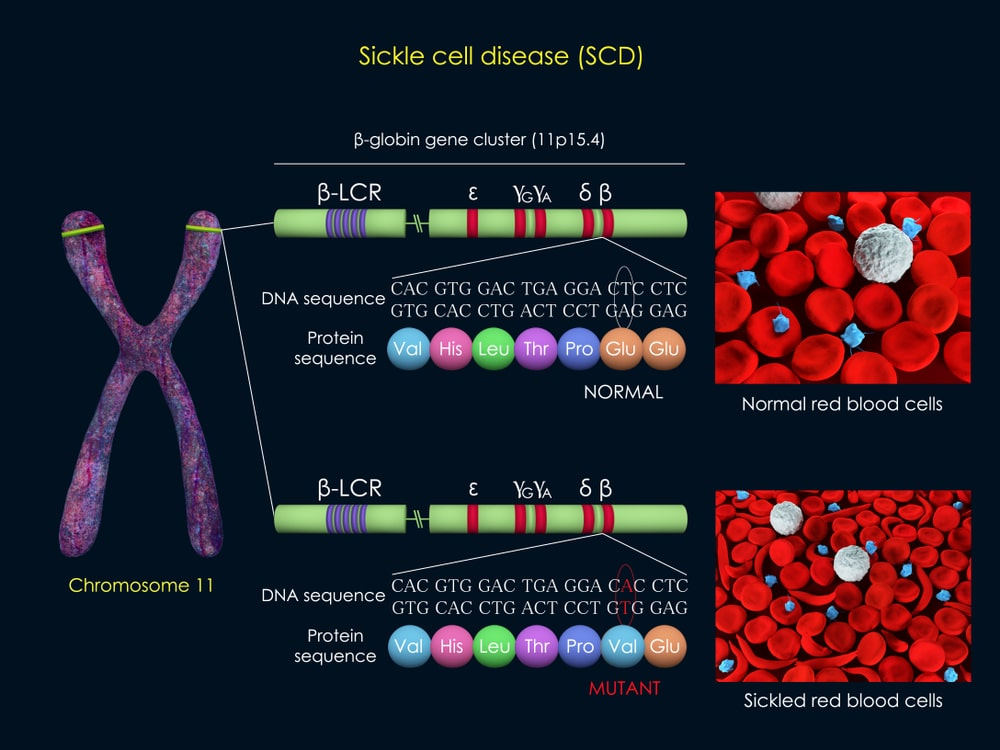 abnormal haemoglobin formation in sickle cell disease