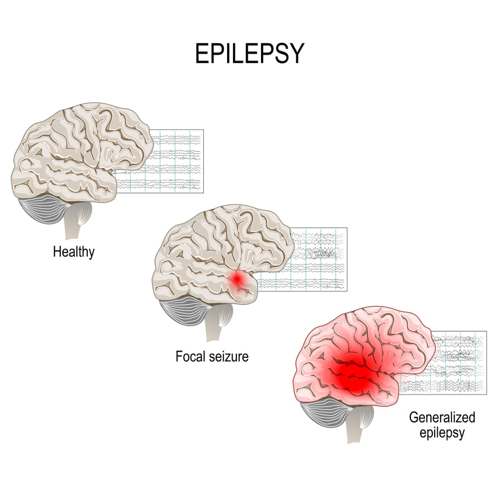focal and generalised seizures