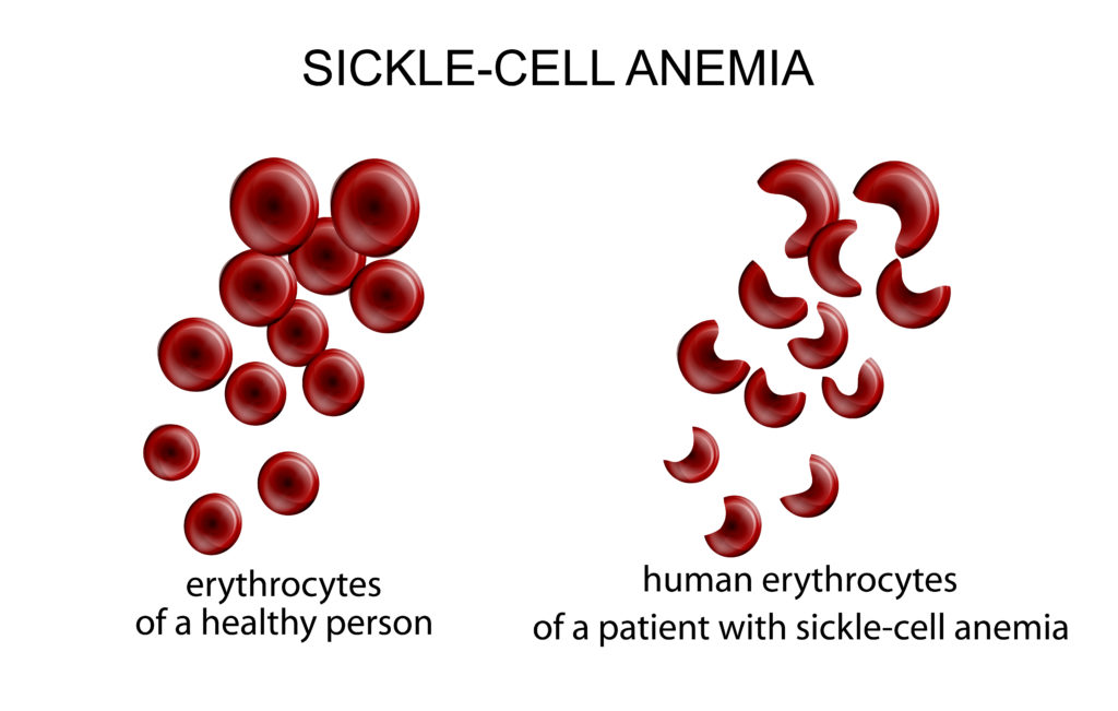 normal vs sickle red blood cell