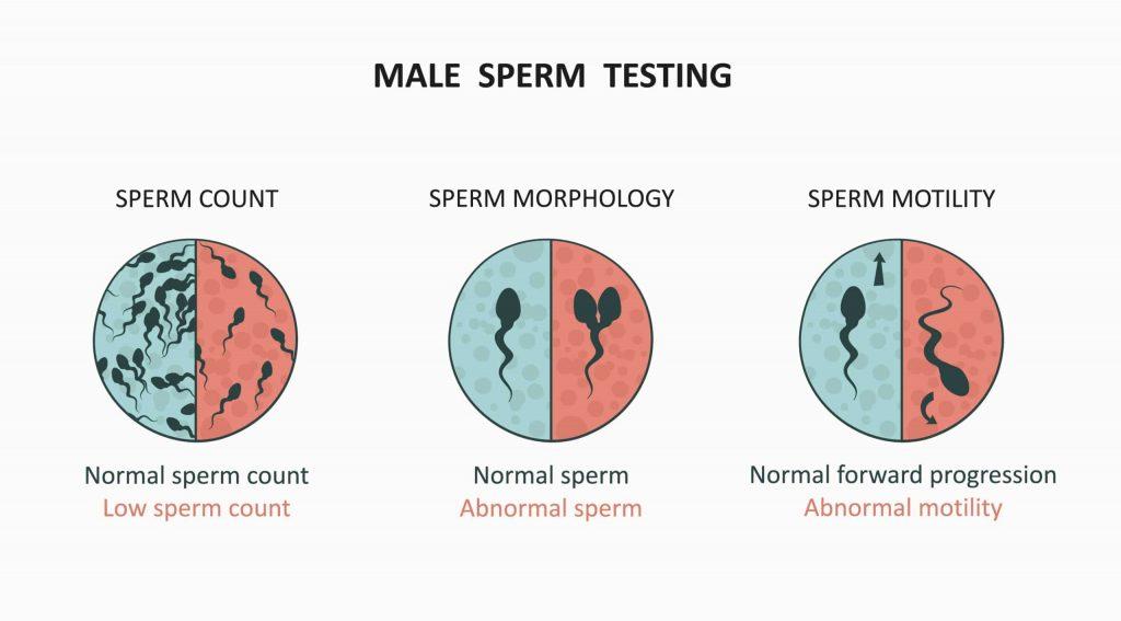 sperm testing in male infertility