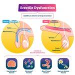 Erectile dysfunction: 4 causes, symptoms, risk factors and treatment options