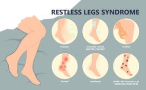 Restless Leg Syndrome symptoms