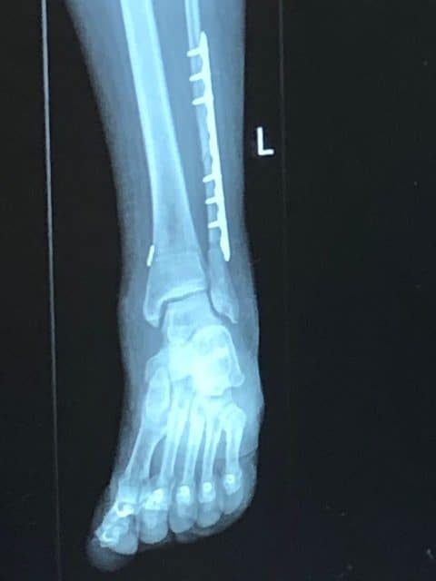 ankle fracture 6 weeks