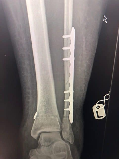 ankle fracture at 3 weeks