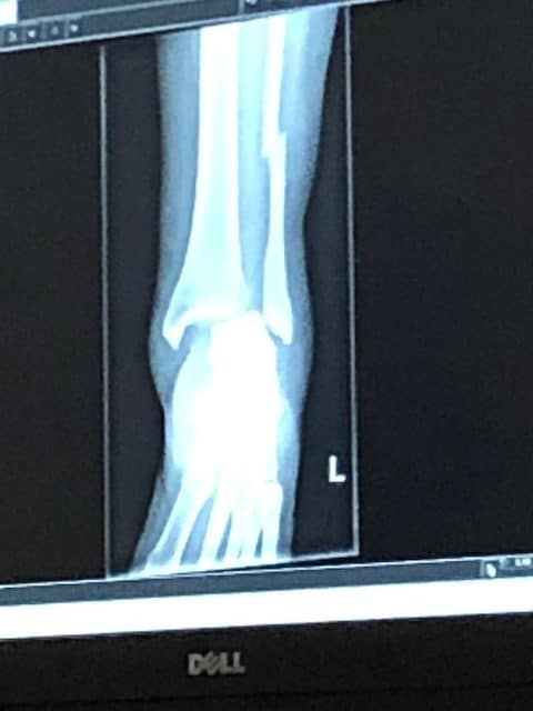 ankle fracture x ray rotated