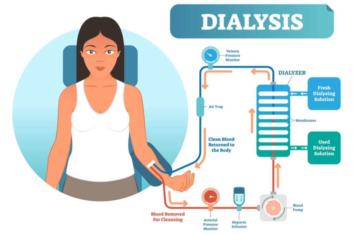 Dialysis in Nigeria: 2 types and costs