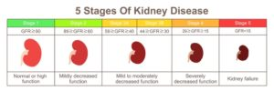 stages of kidney disease