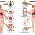 hypothyroidism vs hyperthyroidism