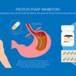 Proton pump inhibitors (PPI)