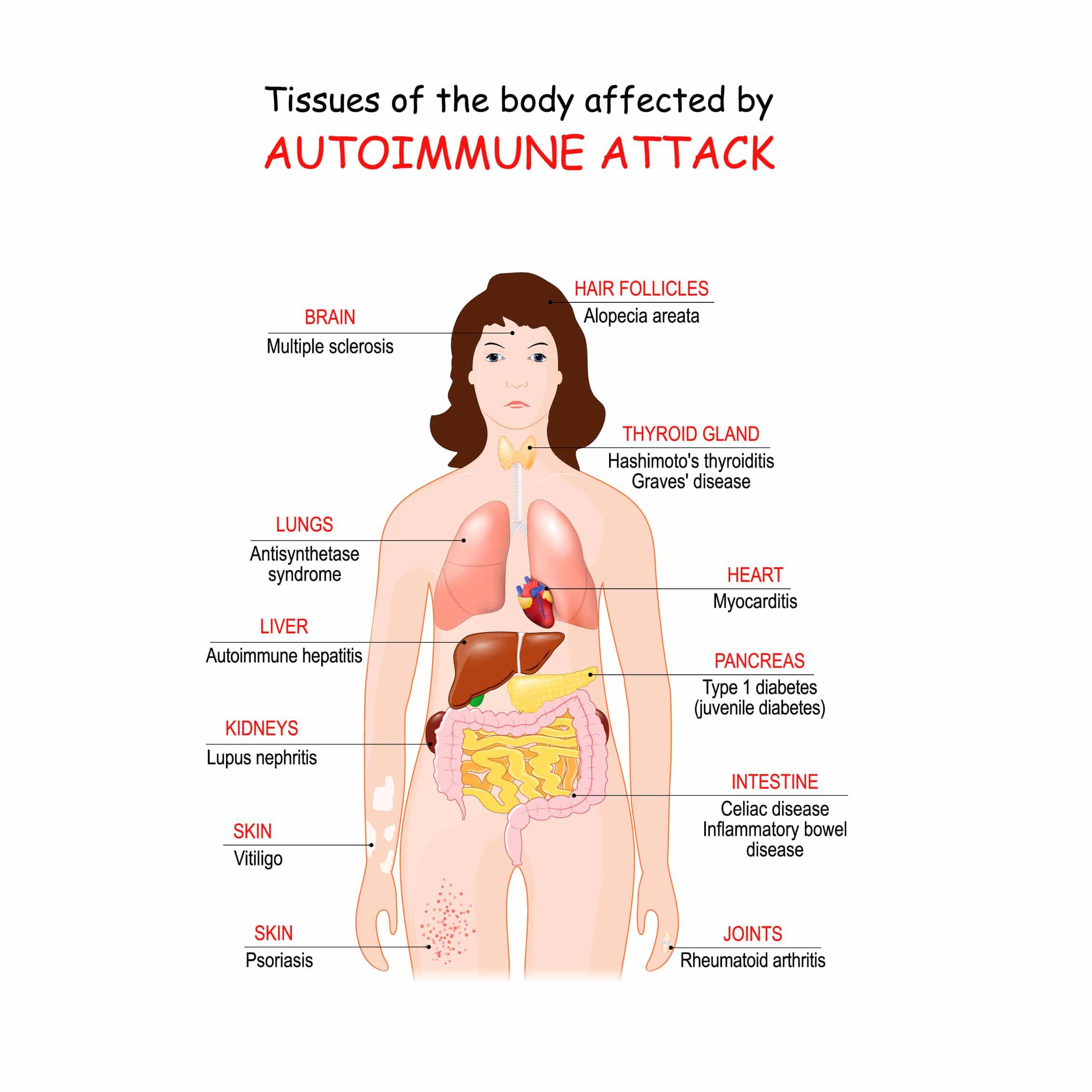 autoimmune disease list
