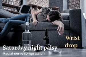 saturday night palsy