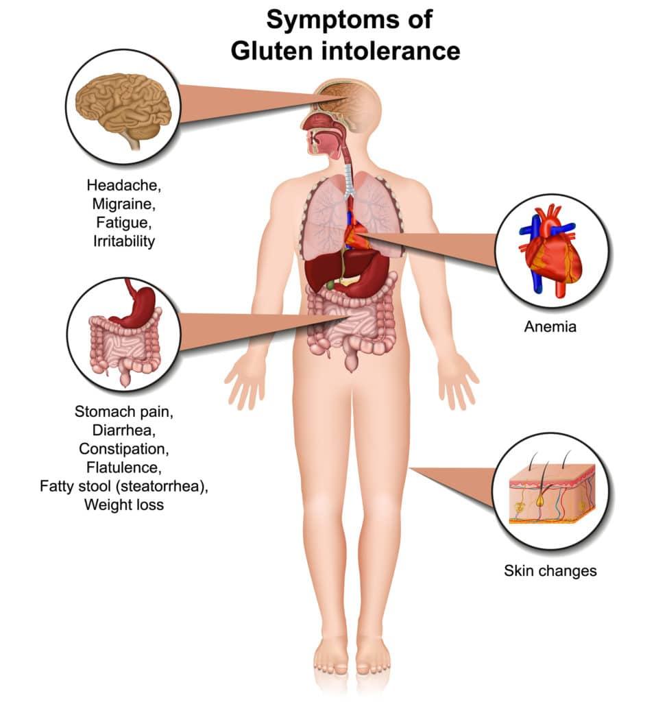 Symptoms of gluten intolerance
