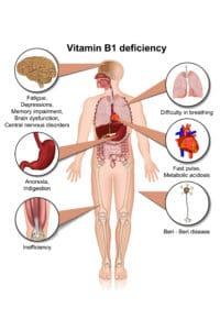 Vitamin B1 thiamine deficiency
