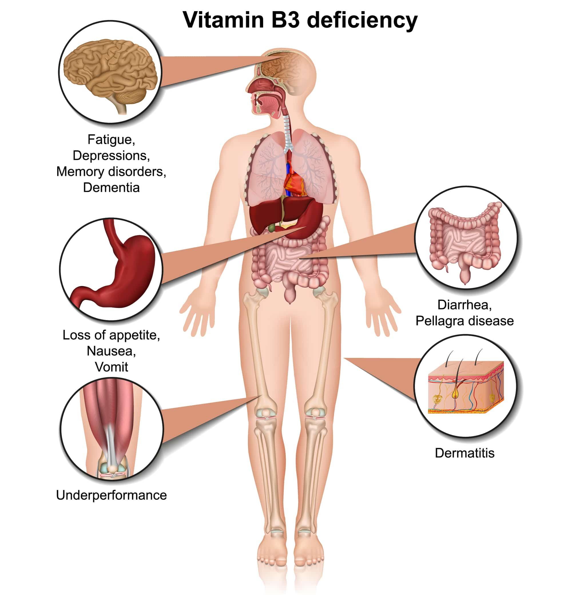 vitamin b3 niacin deficiency